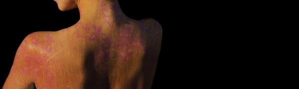 Nacktfoto Schmerzensgeld